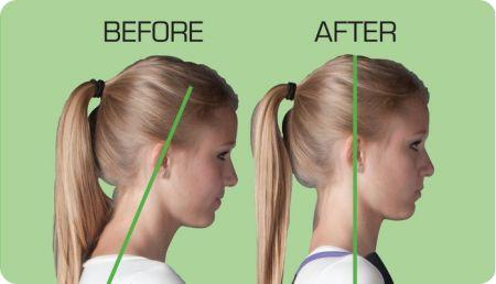 how to fix forward head posture